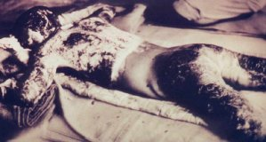 photo: body of a burn victim