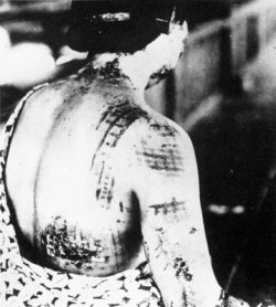 photo: a woman with the pattern of her kimono burnt into her back