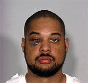 This is his mug shot from the police; he has a huge bruise and a lot of swelling around his right eye.