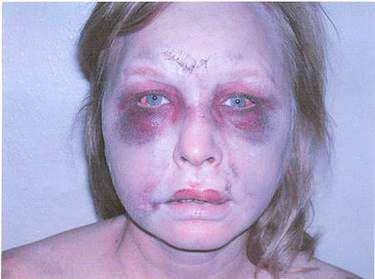 Here is a photo of the injuries to Angela Garbarino's face, including a broken nose, cuts on her cheek, two huge black eyes, and bruises around her mouth.