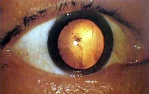 Here is a close-up photo of a survivor's eye blanked out by retinal burning, a common effect of the flash of light and radiation during the atomic bombing of Hiroshima.